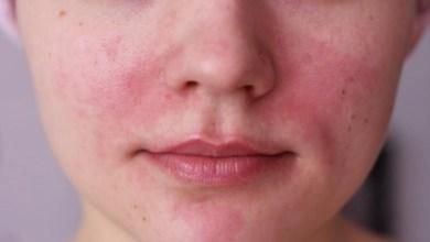 Photo of كيفية علاج التهاب بشرة الوجه