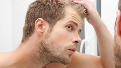 Photo of هل تعاني من مشاكل مع شعرك ؟.. إليك جميع الحلول
