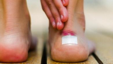 Photo of نصائح صحية للعناية بالفقاعات الجلدية ومسامير القدم