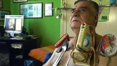 Photo of بالفيديو: رجل مغناطيس يجذب جلده المعادن والزجاج