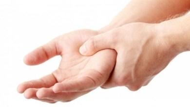 Photo of علامات تكشف إصابتك بمرض تصلب الجلد