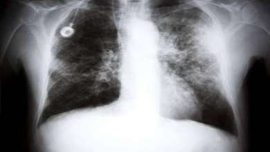 Photo of اختبار التنفس للكشف عن السرطان مبكرا وتخفيف المعاناة!