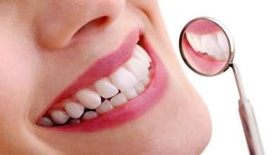 """Photo of اكتشاف الطريقة """"الأكثر أمانا"""" لتبييض الأسنان!"""