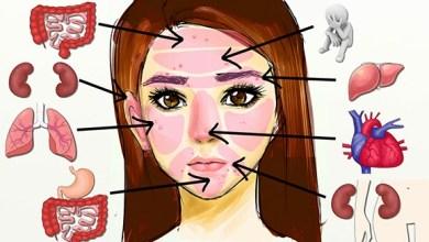 Photo of خريطة الوجه الصينية للتخلص من حب الشباب