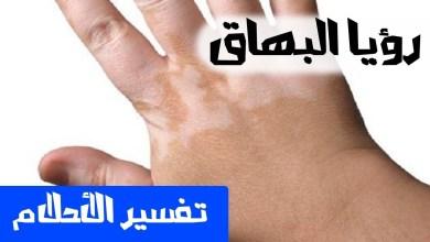Photo of تفسير رؤية البهاق أو البرص في الحلم