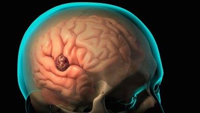 Photo of خُراجُ الدماغ , أسباب خُراج الدماغ , تشخيصُ خُراج الدِّماغ , معالجة خُراج الدماغ