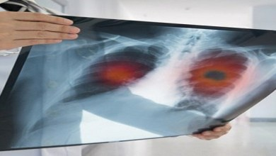 Photo of سرطان الرئة.. الأكثر شيوعاً بالمملكة وهذا سببه الرئيسي