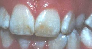Photo of تلون الأسنان بسبب مياه الابار ومياه الشرب ماهو؟ وكيف يمكن علاجه