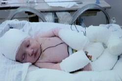 Photo of طفل يولد بدون جلد وبرأس شفافه تظهر مخة..(سبحان الله)!!