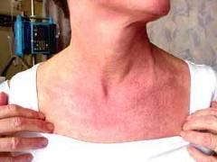 التهاب العضلات - الجلد