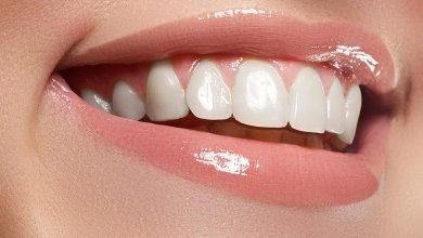 Photo of أفضل الطرق الطبيعية لتبييض أسنانك