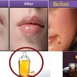 خلطات مجربة لتخلص من البثور في الوجه