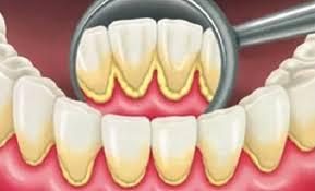 اضرار و فوائد تنظيف الجير من الأسنان