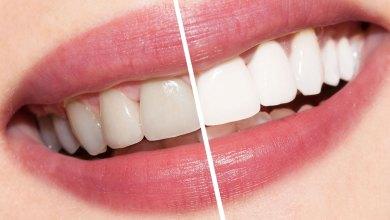 Photo of اضرار تبييض الأسنان
