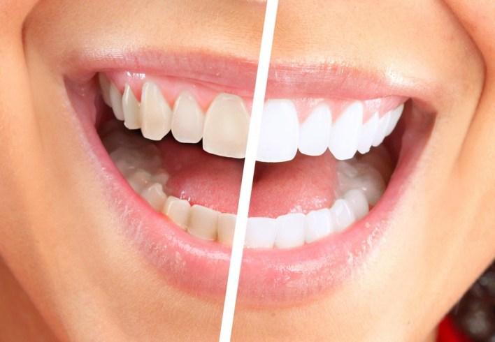 اسرع طريقة لتبييض الاسنان
