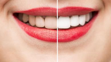 Photo of تبييض الأسنان بوصفات طبيعية من أول مرة