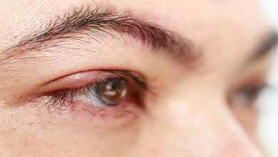 Photo of علاج انتفاخ فوق العين