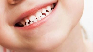 Photo of كم عدد أسنان الطفل