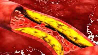 Photo of كيف أتخلص من الدهون في الدم