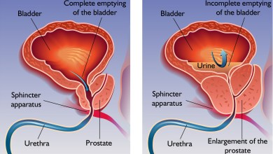 Photo of الفرق بين سرطان البروستاتا وتضخم البروستاتا