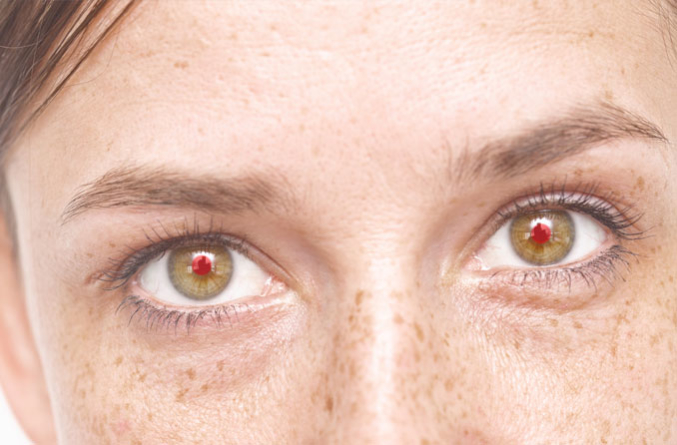 21 وصفة لعلاج احمرار العين بالاعشاب