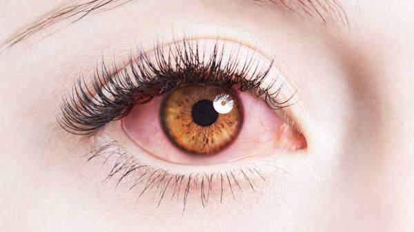 علاج احمرار العين بالاعشاب