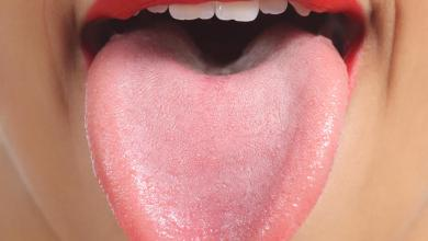Photo of 10 طرق فعالة لعلاج التهاب اللسان بسرعة