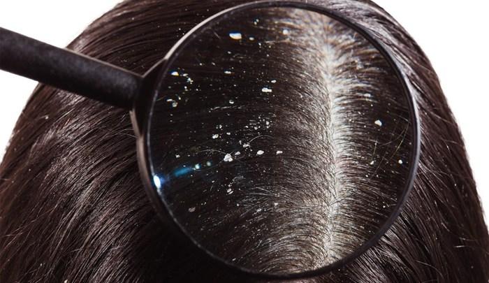 Photo of ماهي أفضل الوصفات لعلاج قشرة فروة الرأس ؟