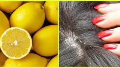 Photo of وصفات الليمون لعلاج قشرة الشعر