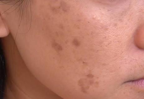 Photo of 16 علاج لإزالة البقع السوداء في الوجه