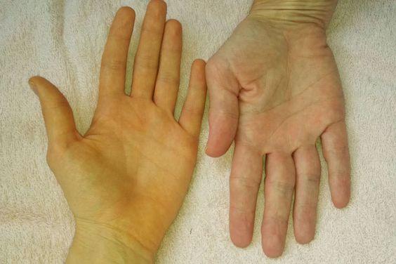 اصفرار الجلد
