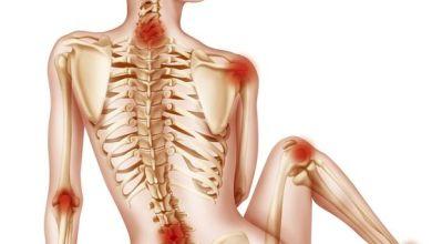 Photo of أسباب و أعراض إلتهاب المفاصل