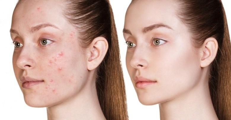 10 وصفات لعلاج البقع السوداء على الوجه