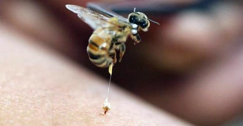 أضرار لسعة النحل