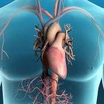 مضاعفات القسطرة القلبية