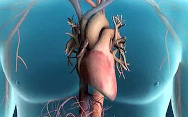 Photo of ما هي مضاعفات القسطرة القلبية