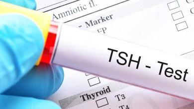 Photo of تحليل الغدة الدرقية tsh إذا كان منخفض