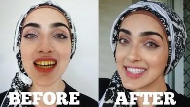 Photo of تبييض الاسنان بالكركم في المنزل مجرب