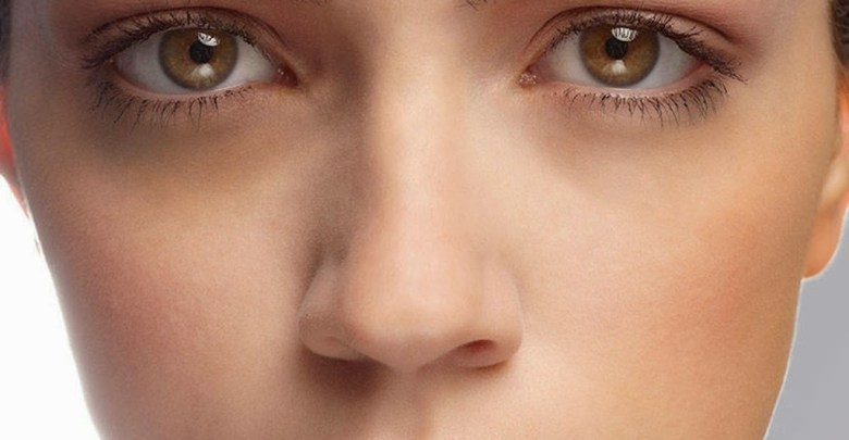 علاج الهالات السوداء حول العين