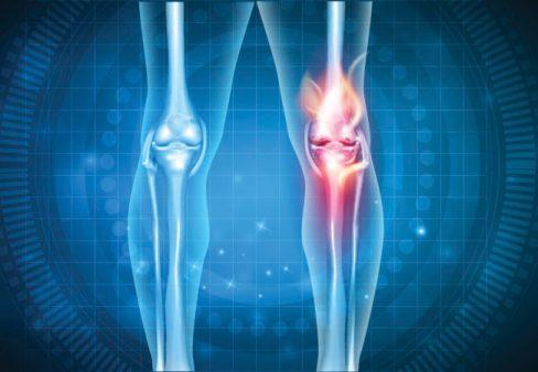 طريقة علاج طقطقة الركبة