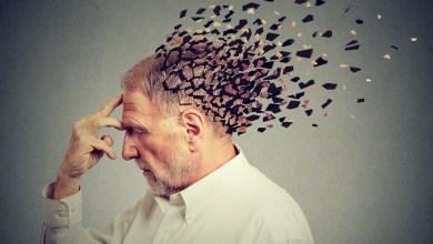 Photo of تعريف الزهايمر وأعراض مراحل مرض الزهايمر مع الأسباب