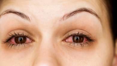 Photo of أعراض حساسية العين