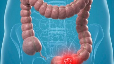 Photo of أسباب وأعراض سرطان القولون