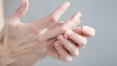 Photo of أسباب إلتهاب منطقة ما بين الأصابع وطريقة العلاج
