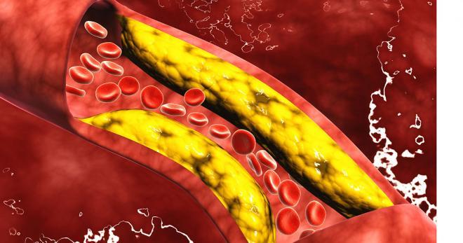 إرتفاع مستوى الكوليسترول