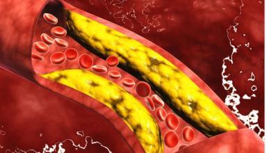 Photo of إرتفاع مستوى الكوليسترول