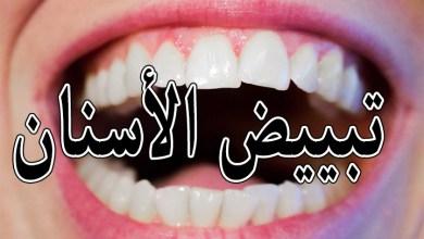 Photo of تبييض الاسنان بالبيت