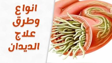 Photo of علاج الديدان بالأعشاب