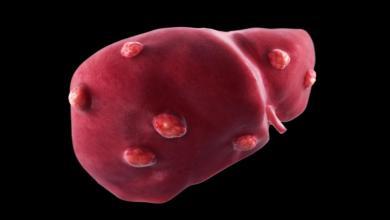 Photo of علاج سرطان الكبد بالأعشاب