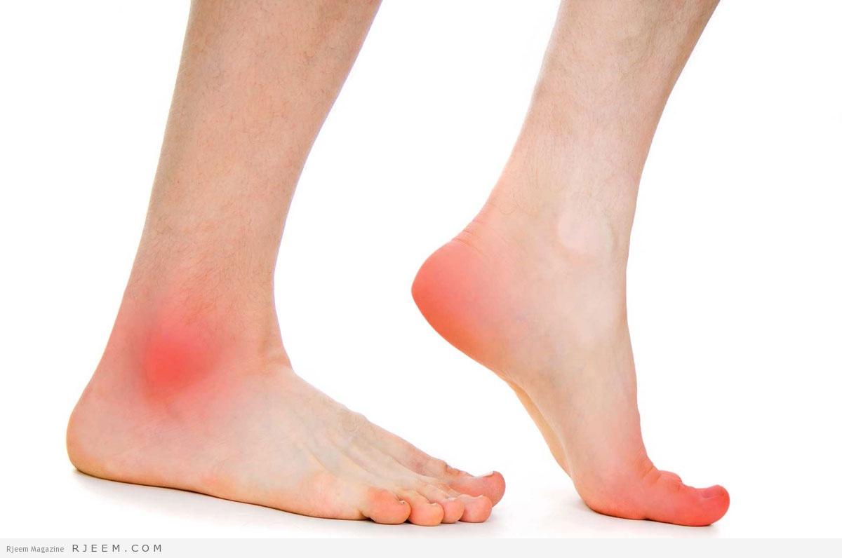 علاج وجع القدمين من الوقوف
